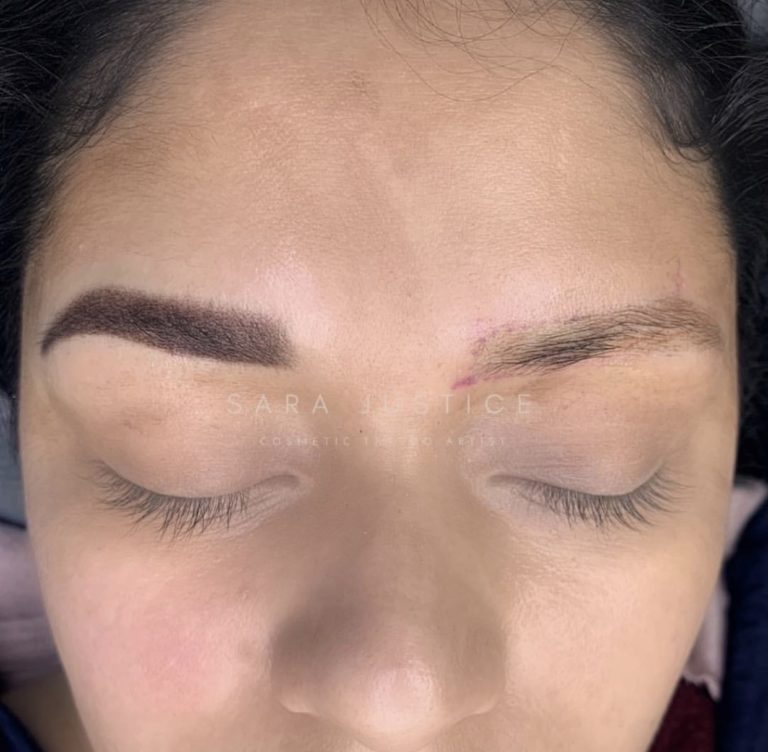 eyebrow damage that needs to be repaired