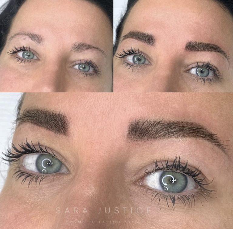 multiple views of restored eyebrows