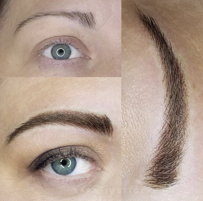 eyebrow restoration example