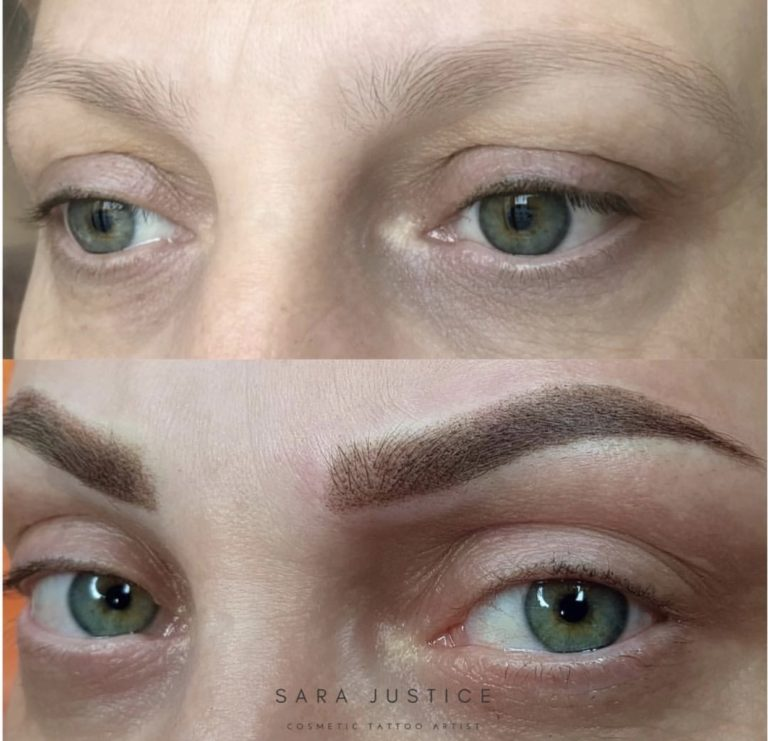 removing signs of age in the eyebrows