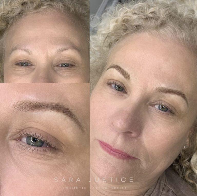 eyebrows restored
