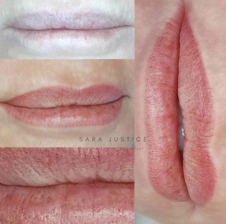 lip transformation