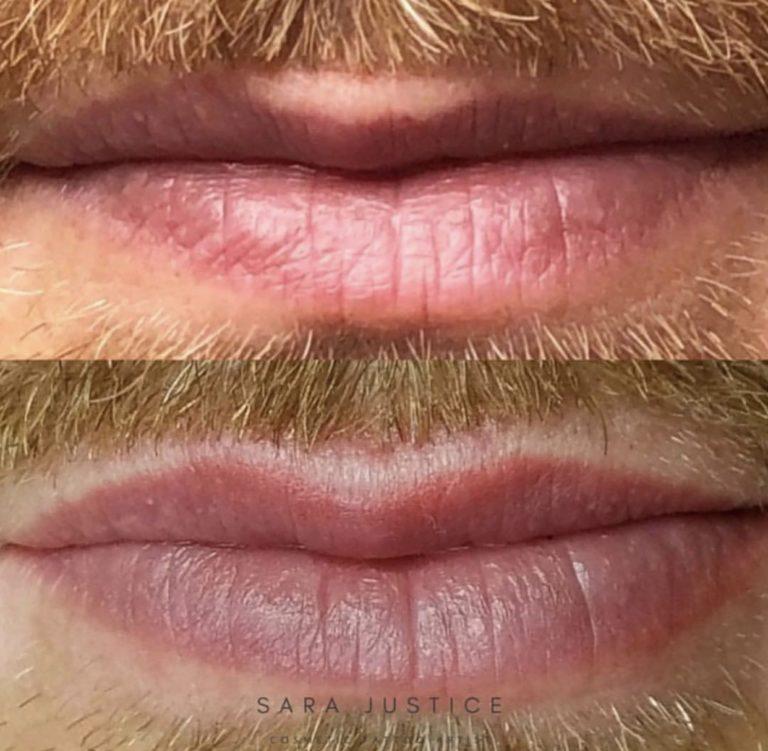 Man's lip restoration